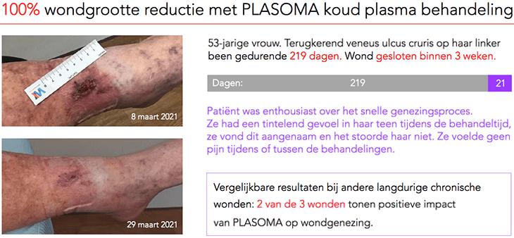 Wond van 219 dagen gesloten binnen 3 weken met PLASOMA.