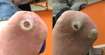 Case2_wound_images