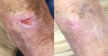 Case1_wound_images