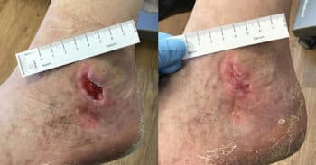 Case5_wound_images730x381