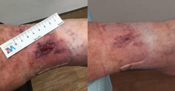 Case8_wound_images730x381